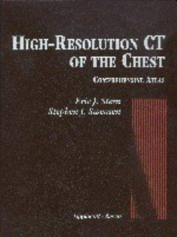 Download High-resolution CT of the chest